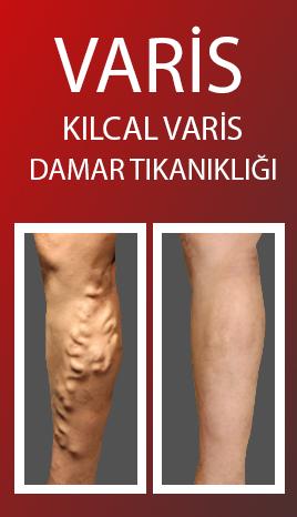 kilcal-varis-atardamar-tedavisi
