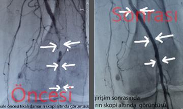 ameliyatsiz-atar-damar-tedavisi