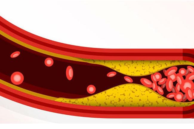 damar-hastaliklarindan-kurtulmak-tedaviden-cok-daha-kolay