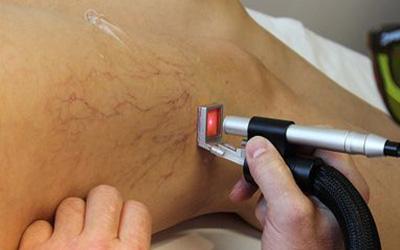dr mustafa saygin- varis -kilcal varis - en hızlı varis tedavisi