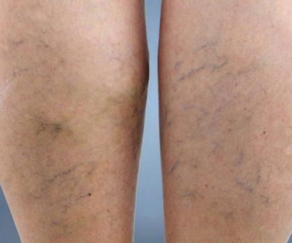 saygin-klinik-bacak-damari-varis-tedavisi-dr-mustafa-saygin-1