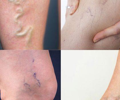 saygin-klinik-bacak-damari-varis-tedavisi-dr-mustafa-saygin-2