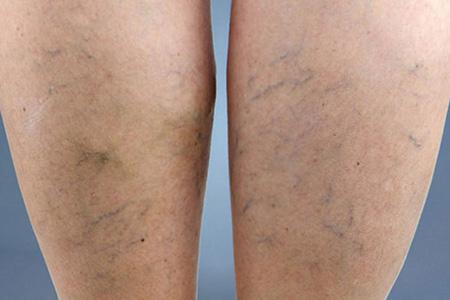 saygin-klinik-bacak-damari-varis-tedavisi-dr-mustafa-saygin-k