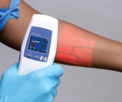 sayginklinik-damar-gorme-infrared-cihazi